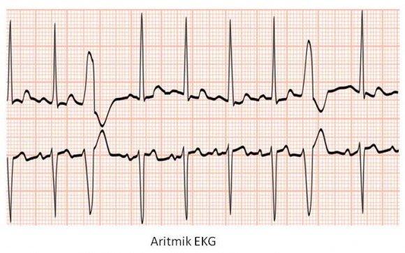 Aritmik_EKG.JPG