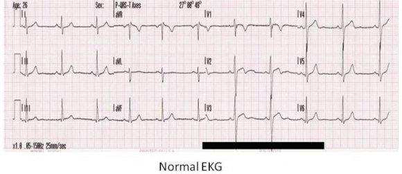 Normal_EKG.JPG